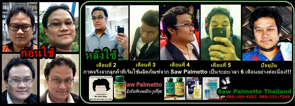Brand Ambassador of Saw Palmetto Thailand
