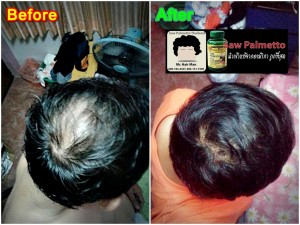 before-After-Saw_Palmetto-used-1
